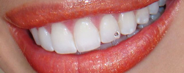 Aplikace dentálního šperku