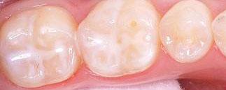 Pečetění zubů